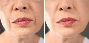 מיקרונידלינג להצערת העור